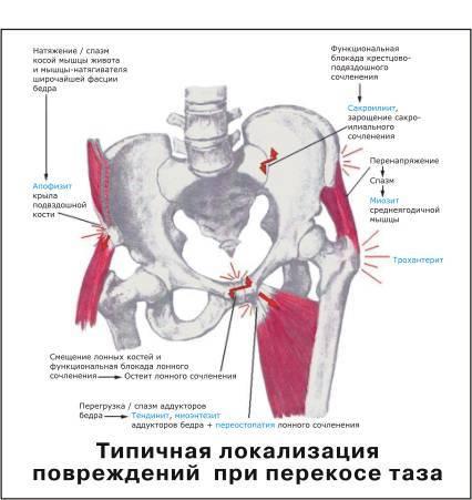 Боли в лобке и копчике при беременности